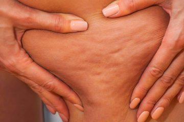 cellulite fibrosa